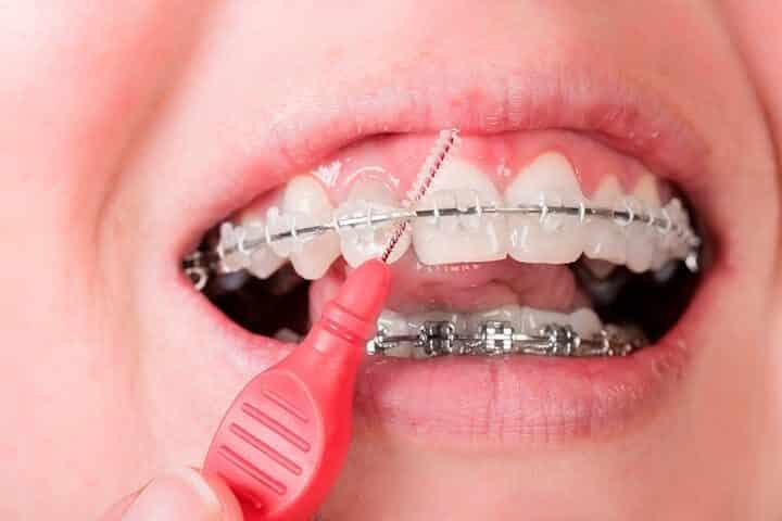 gaatjes in verzorging tanden met beugel