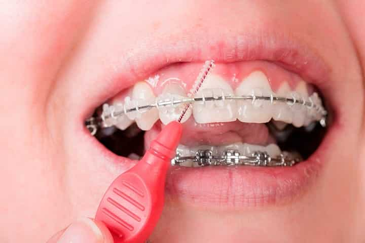 verzorging tanden met beugel
